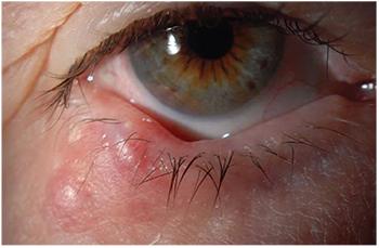 eyelid papilloma surgery