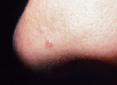 Tumorile benigne rinosinusale