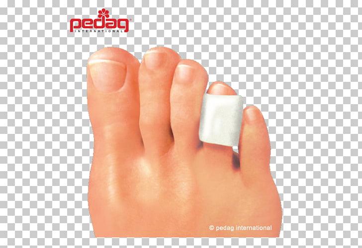 foot wart nail polish