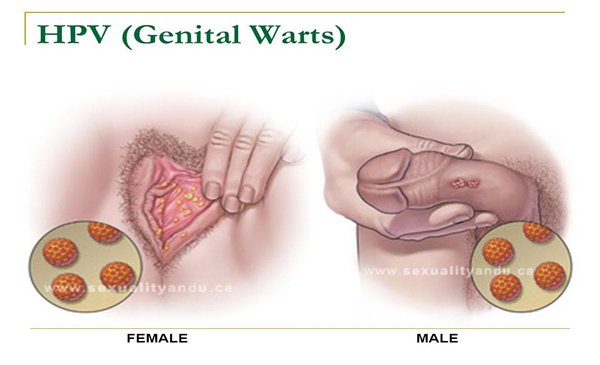 genital warts and cancer woman)