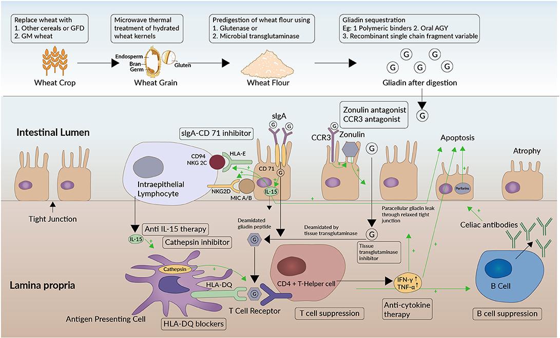 helminth therapy celiac)