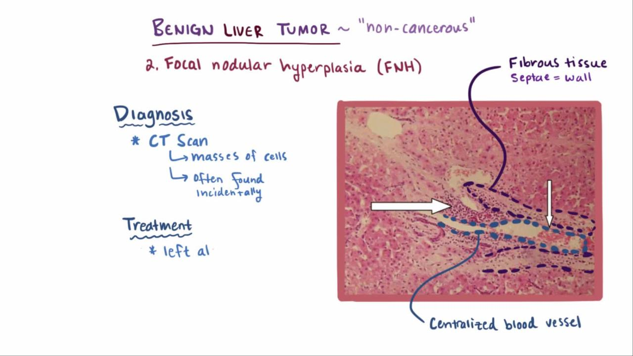hepatic cancer estrogen)