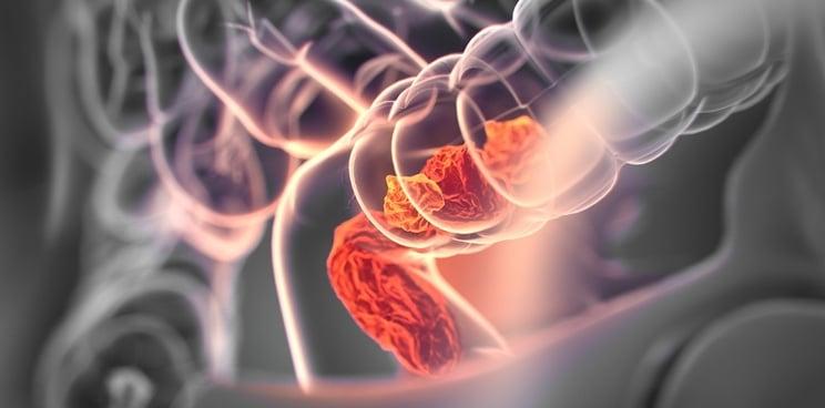 cancer de la gorge du au papillomavirus icd 10 code for papilloma
