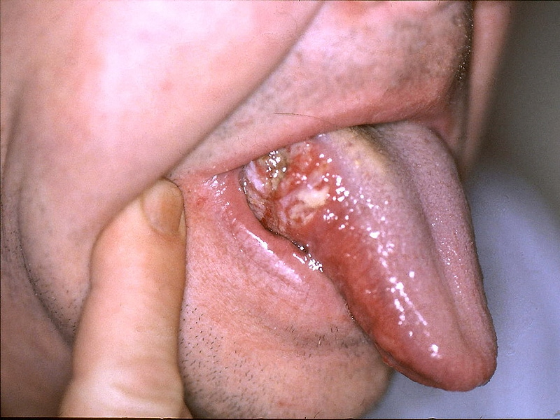 hpv 16 throat cancer recurrence papilloma al labbro