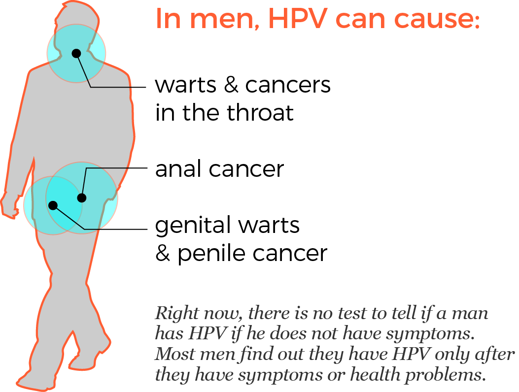 hpv cancer male)