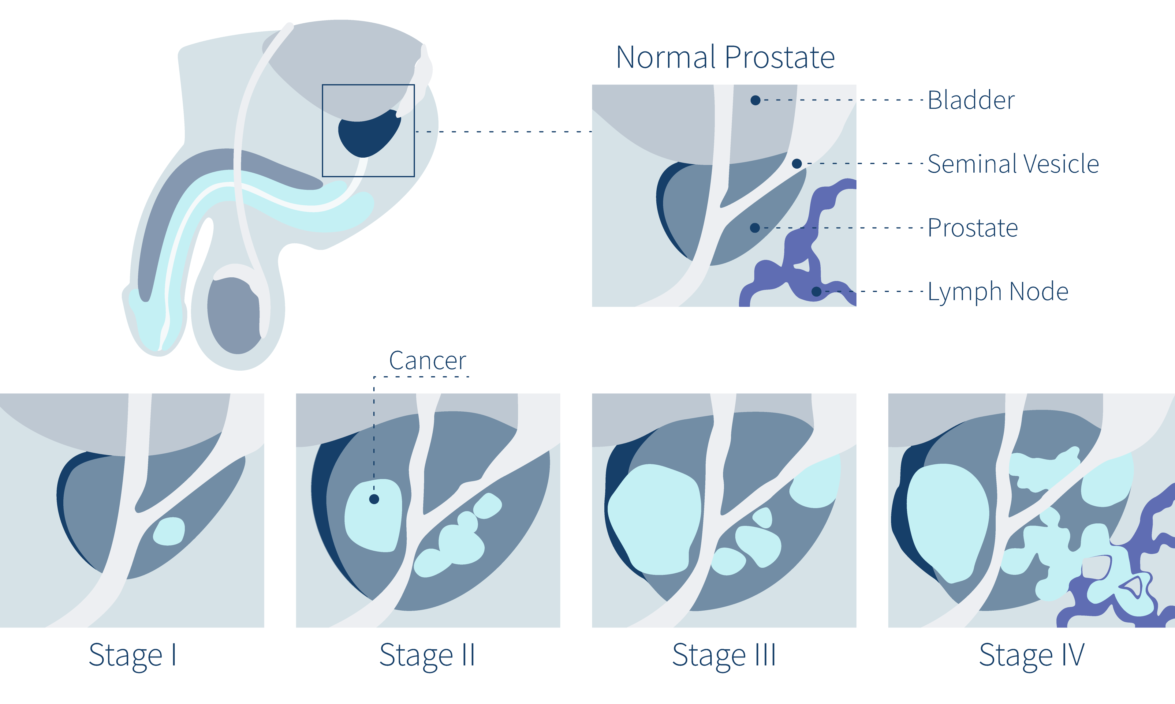 hpv causes prostate cancer