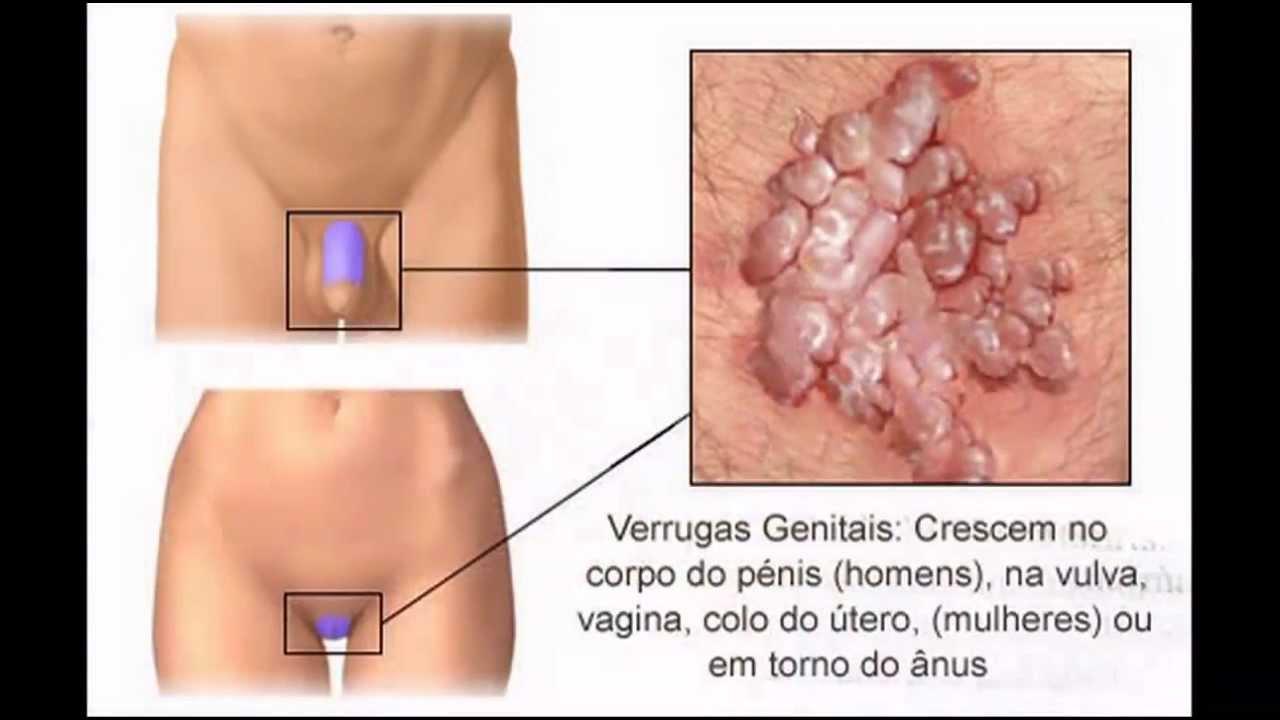 Simptomele HPV la bărbat și femeie