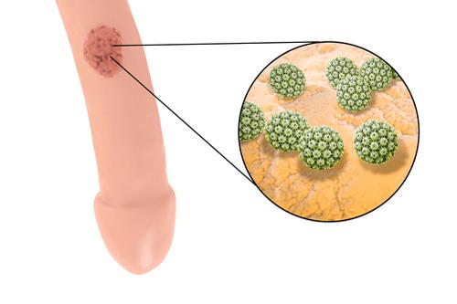 hpv herpes genitalis)