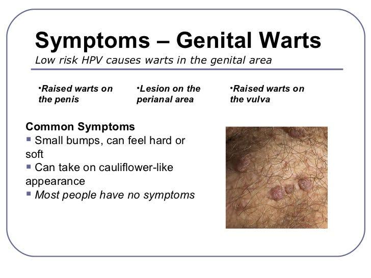 hpv treatment warts)