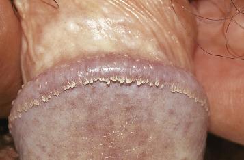 hpv urethral warts)