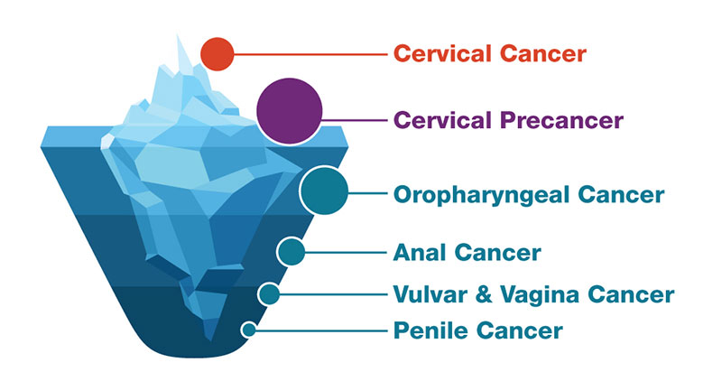 hpv vaccine causes cervical cancer)