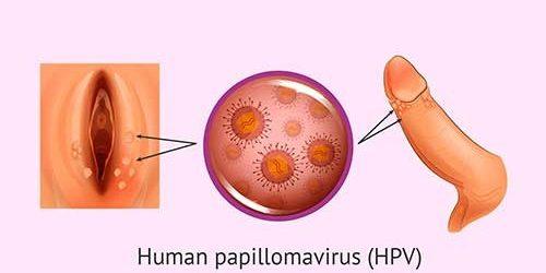 hpv virus laser treatment