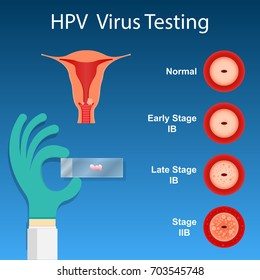 Test HPV - Donna Medical Center