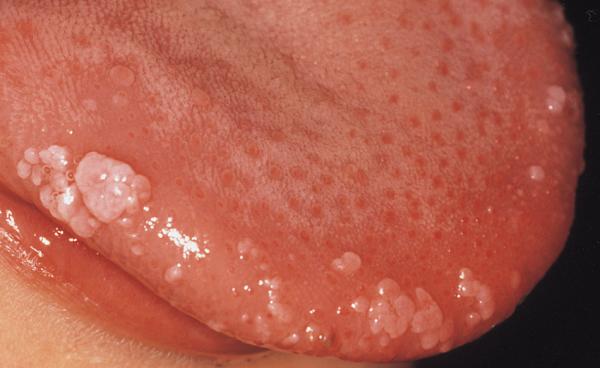hpv virus u grlu