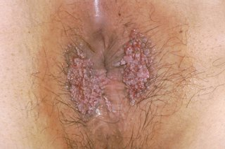 hpv warts itchy)