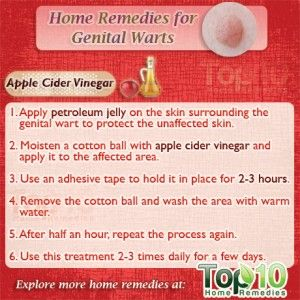 hpv warts removal at home)