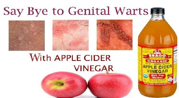 hpv warts removal