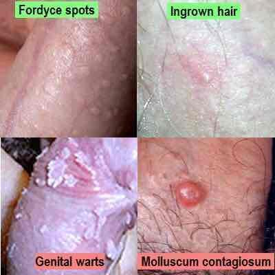 hpv warts vs pimples)