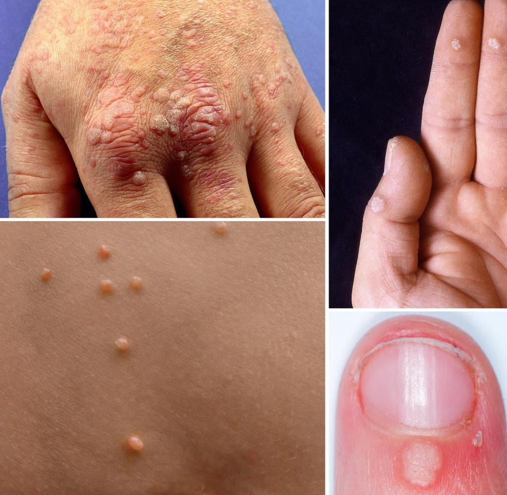 papilloma virus rapporti non protetti homeopathy treatment for papilloma