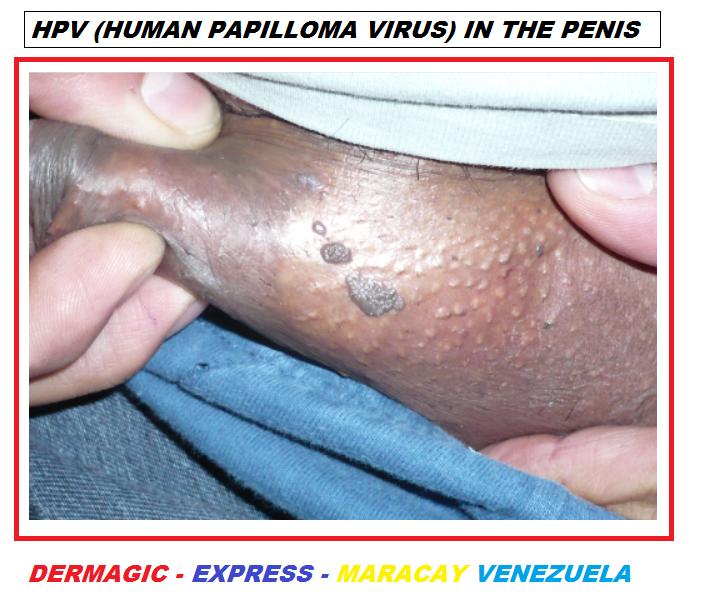 human papilloma virus male