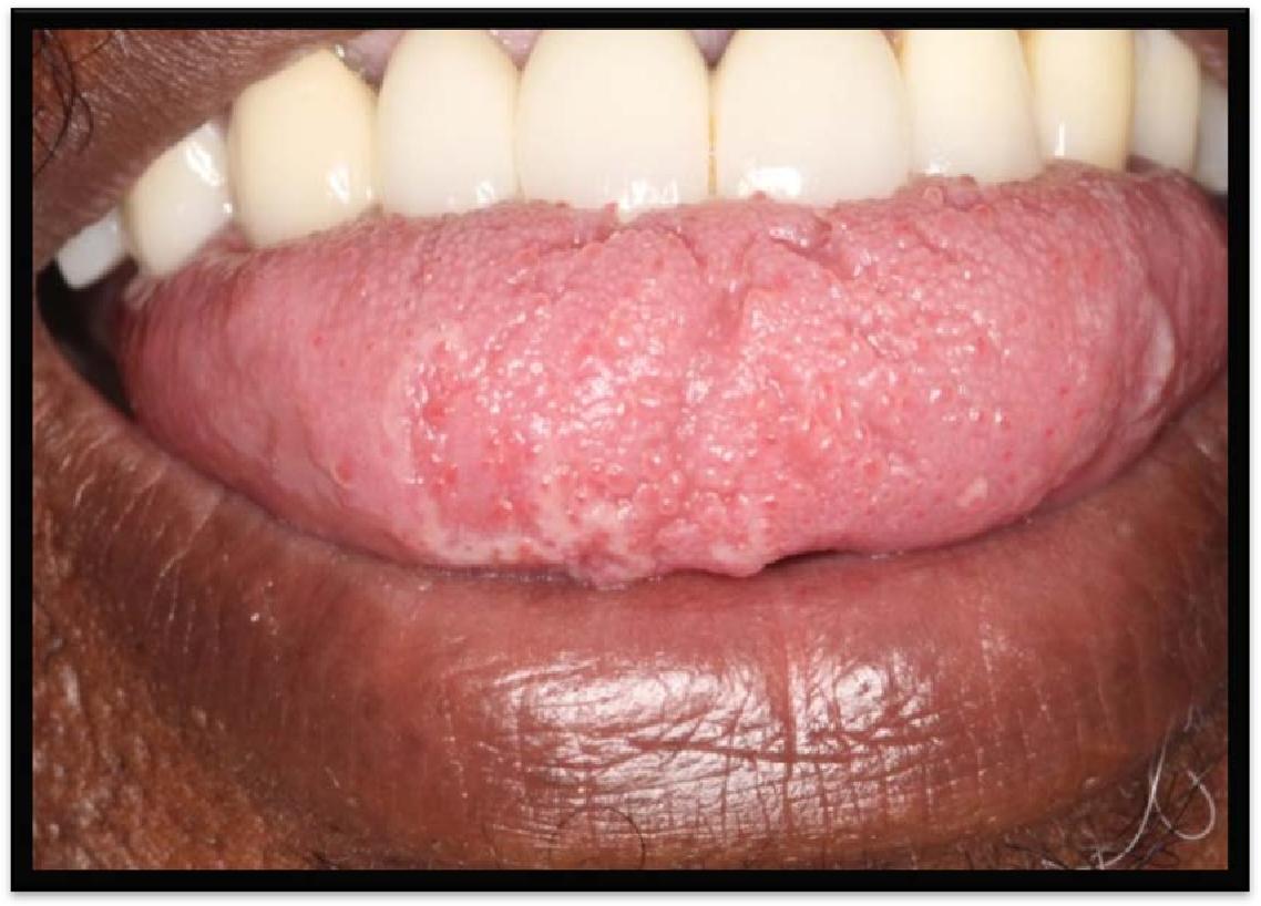 human papillomavirus (hpv) mouth