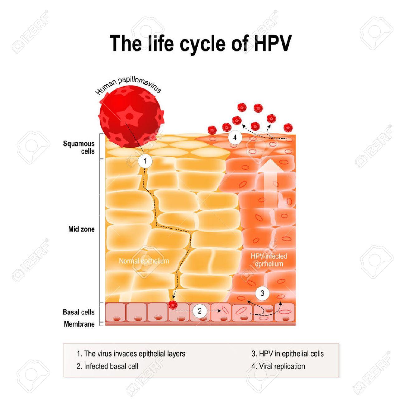 human papillomavirus infection virale)
