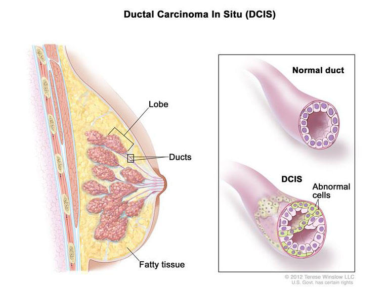 Breast Pathology, Diagnosis by Needle Core Biopsy - evenimente-corporate.ro