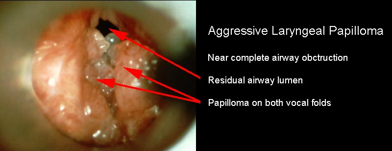 laryngeal papilloma symptoms