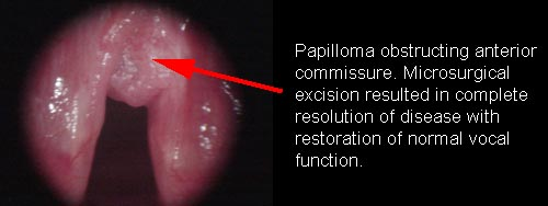 laryngeal papilloma what is it)