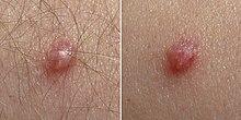 lesion papiloma virus)