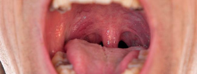 lesiones en boca por papiloma