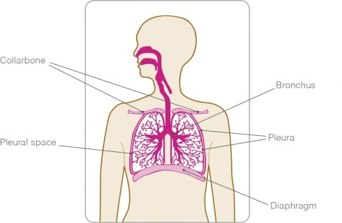 metastatic cancer lung treatment