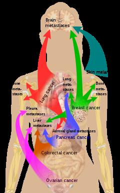 metastatic cancer meaning in urdu)