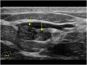 multiple intraductal papillomatosis