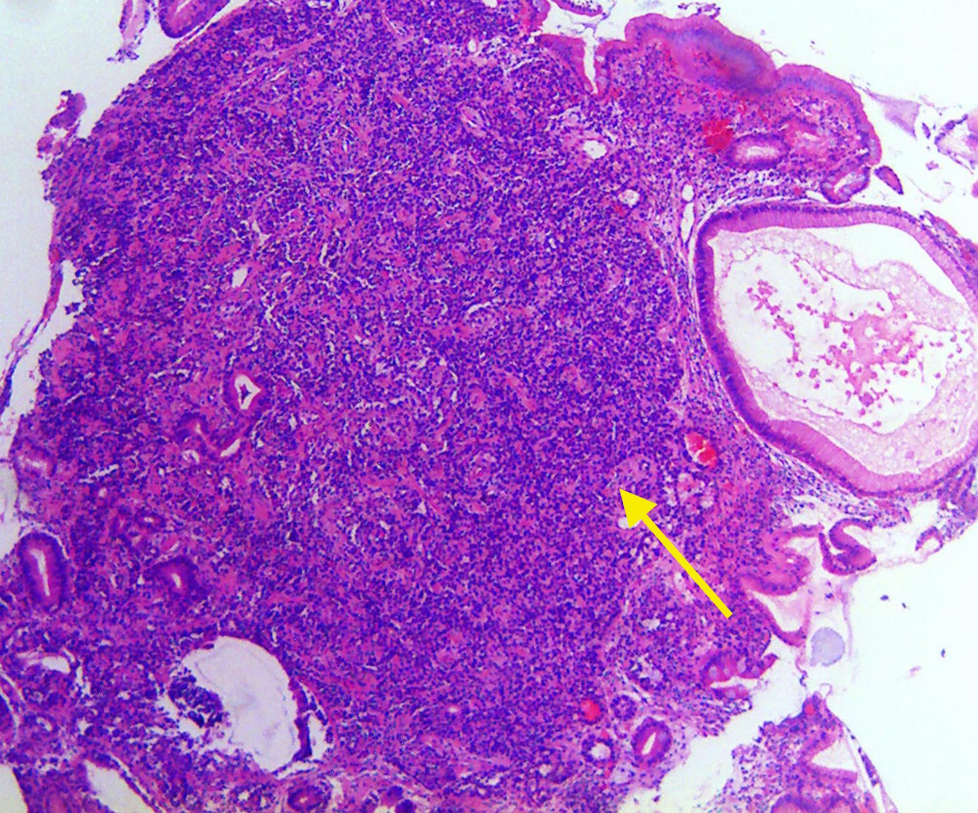 neuroendocrine cancer gastric