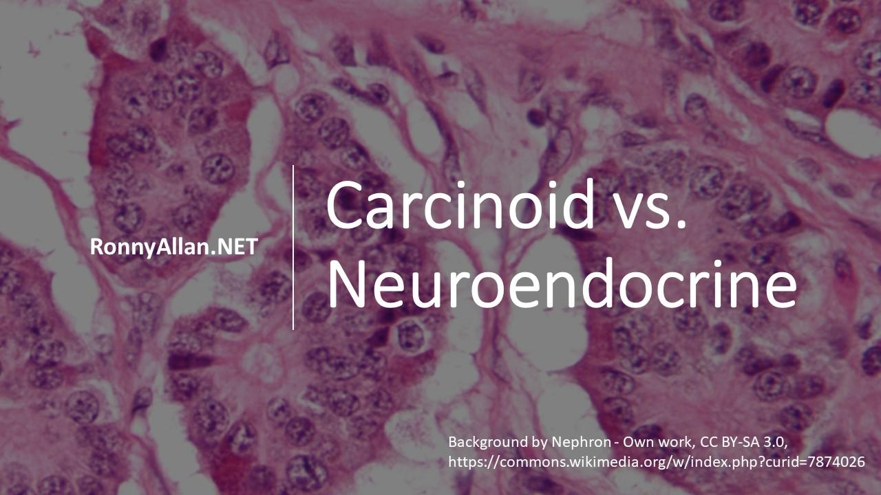 neuroendocrine cancer tattoos)