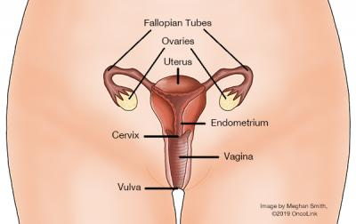 ovarian cancer abdominal mass)