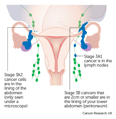 ovarian cancer treatment stage 4)