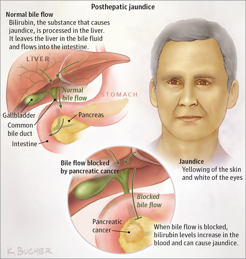 pancreatic cancer jaundice