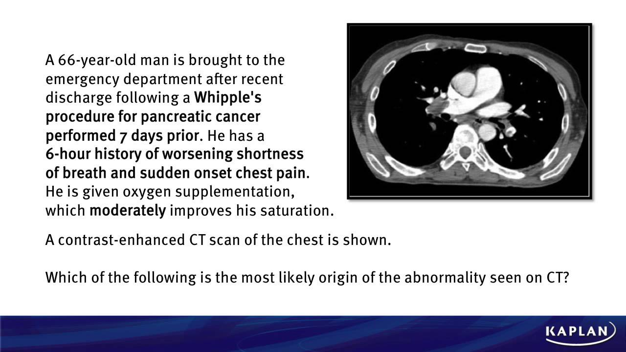 pancreatic cancer questions usmle