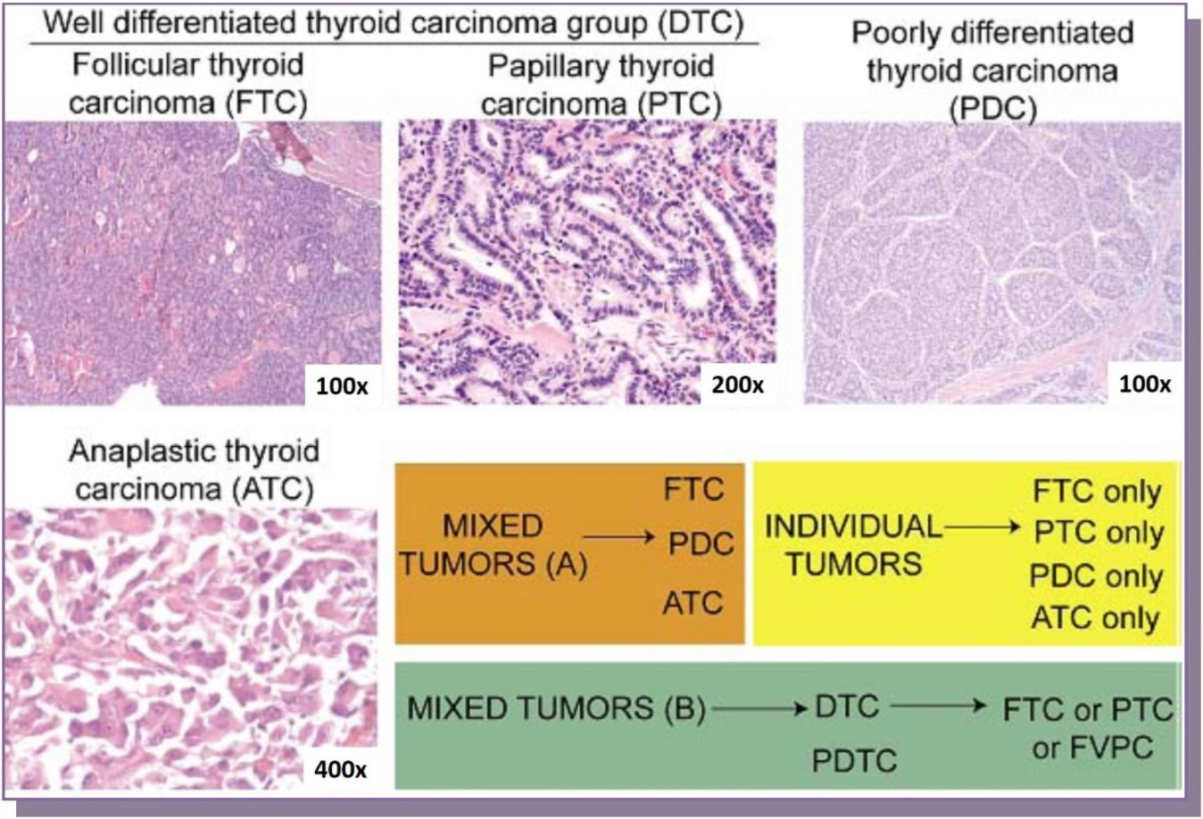 papillary thyroid cancer development