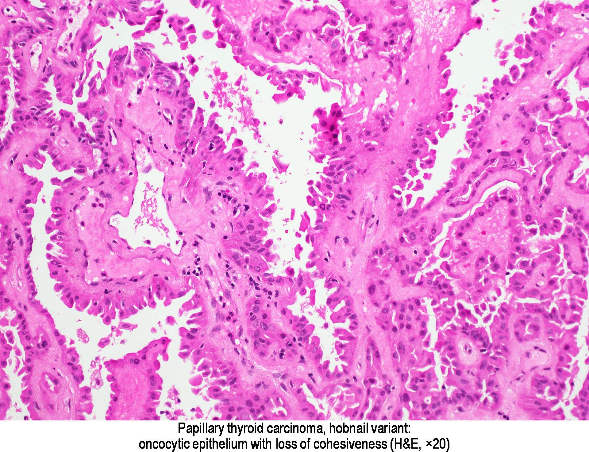 papillary thyroid cancer ovary