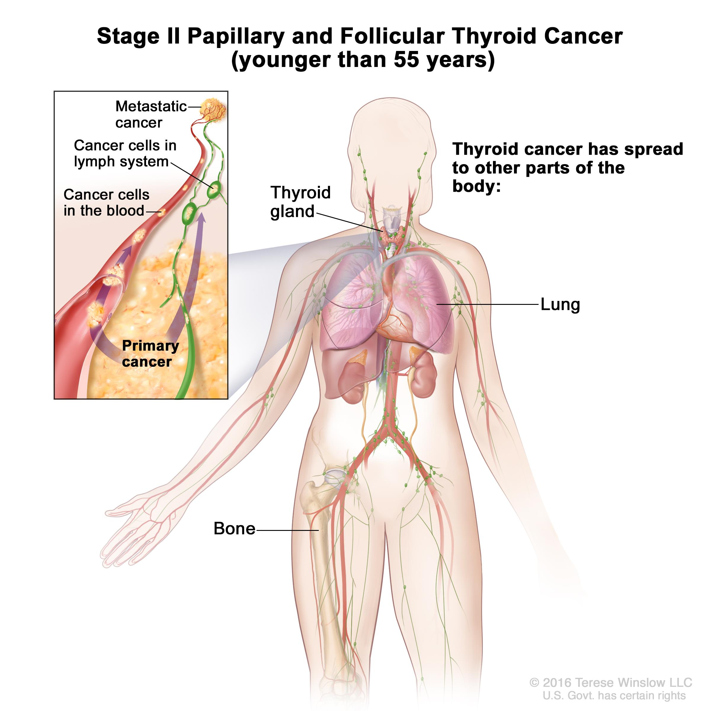 papillary thyroid carcinoma treatment options)
