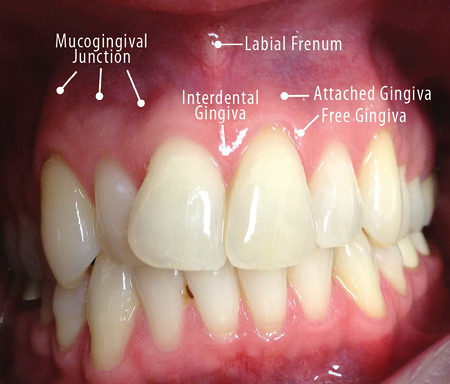 papilloma between teeth)