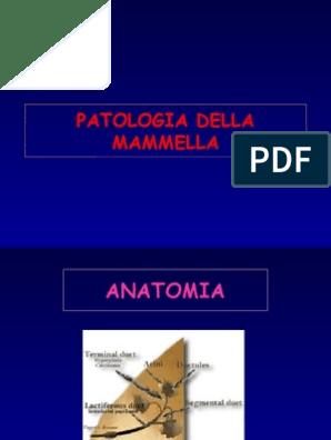 papilloma duttale intervento