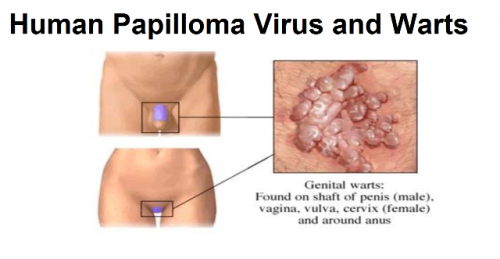 papilloma infection)