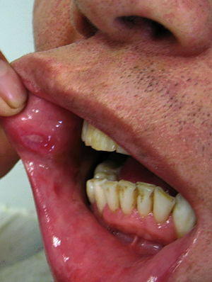 papilloma of lip icd 10