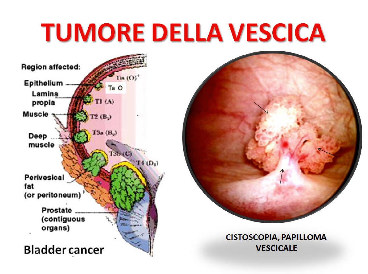 papilloma vescica sintomi)