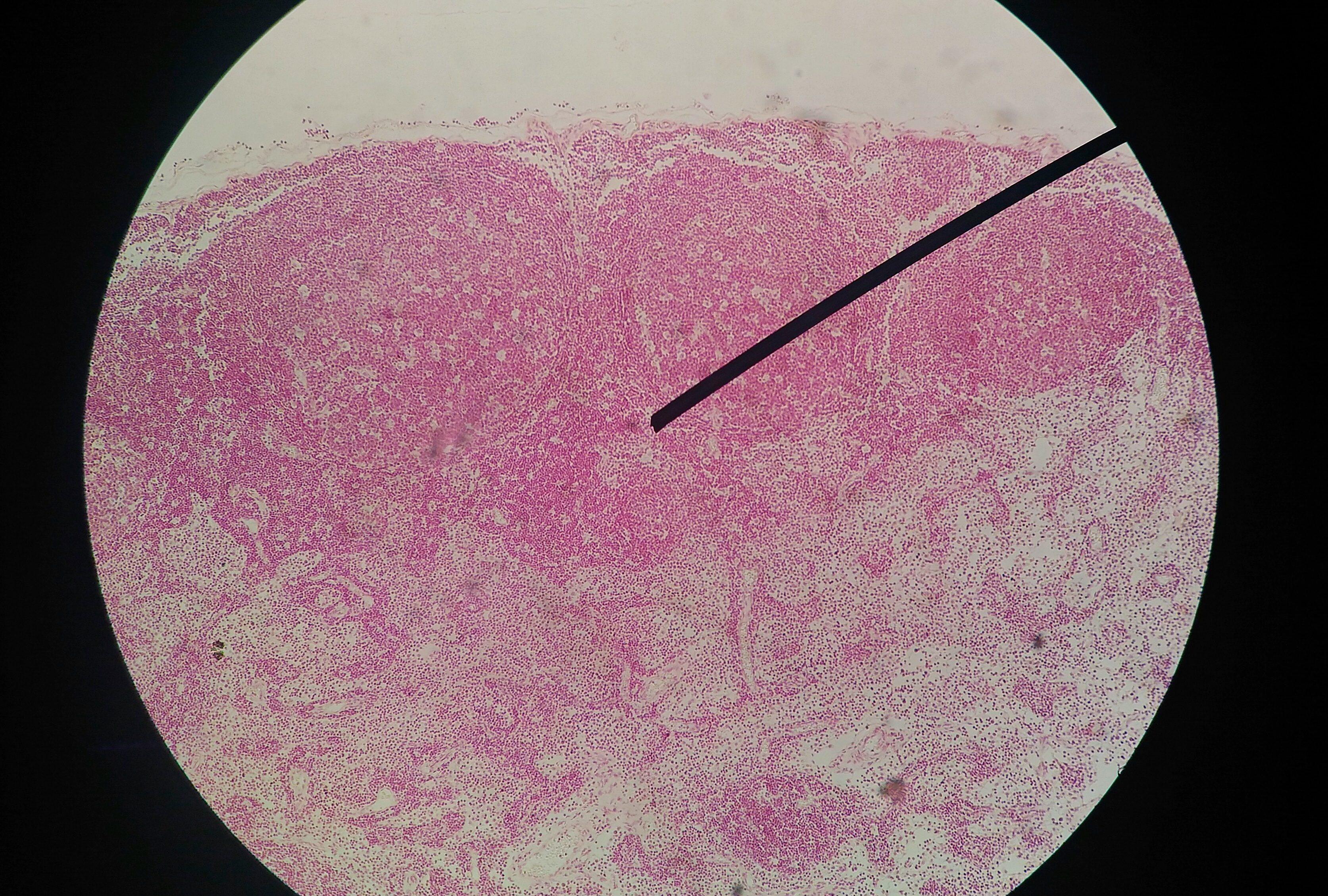 HPV (Human Papilloma Virus)