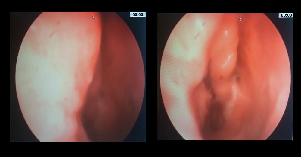 testicular cancer vs cyst